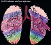 On the cover - Inhibiting necroptosis in IL-33-dependent allergic airway inflammation – anti-necroptosis treated (left) vs untreated (right) lung.