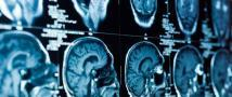 Insulin resistance may lead to faster cognitive decline