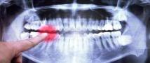 Social anxiety may increase risk of dental problems