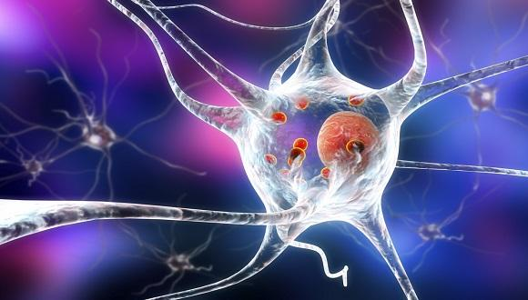 PD 3D illustration showing neurons
