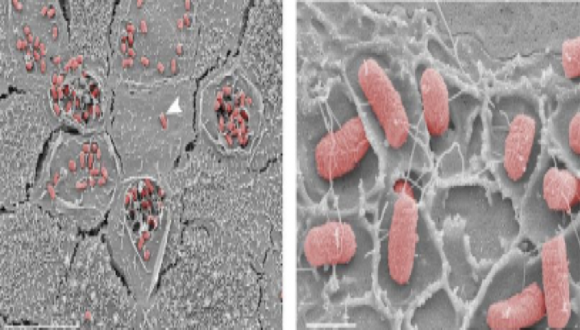 Imaging infection: novel approaches to study host- pathogen interactions live and in nanoscale