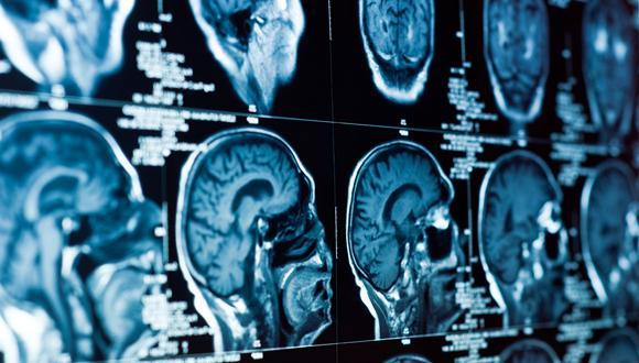 Brain Repair