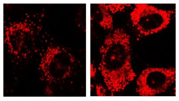lysosomal activity