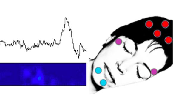 sleep recordings in neurosurgical patients