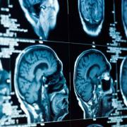 Neurology & Neurosurgery