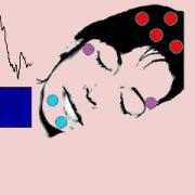Intracranial sleep recordings